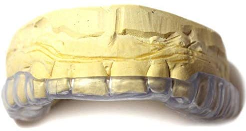 Best Pick: J&S Dental Lab Custom Dental Night Guard for Upper Bite Guard